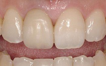 前歯の詰め物について