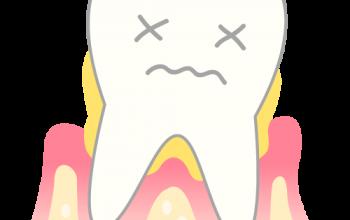 歯周病の知っておきたいこと!